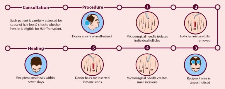 How Hair Transplantation Works