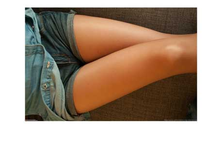 Thigh Lift and Reduction