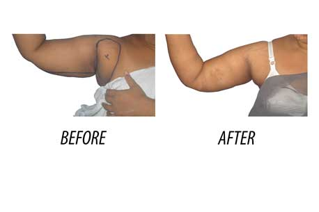 Arm Reduction