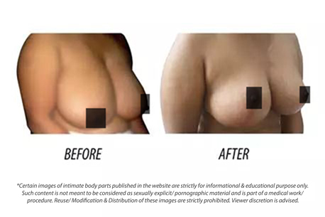 Breast Augmentation Breast Reduction