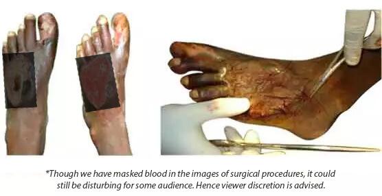 Limb Salvage Procedure